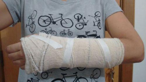 o braço quebrado de minha amiga.